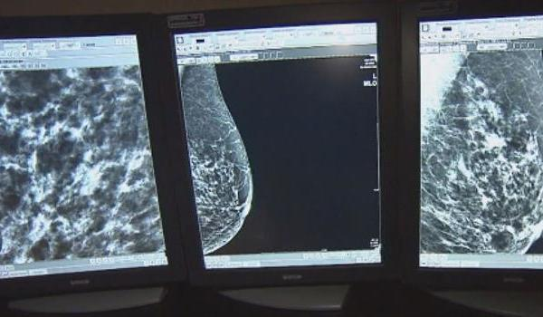 breast-cancer-mammograph-mammography_174219540621